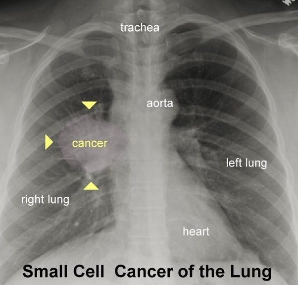 cancer lungs